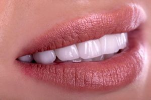 Perfect smile after dental crown restorative treatment.