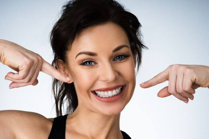 A smiling young woman wearing dental braces pointing at her teeth.