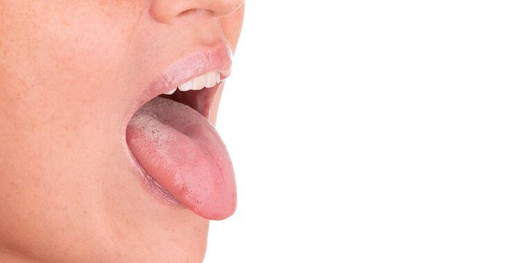 scalloped tongue