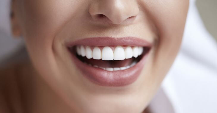 Woman after dental veneers cosmetic treatment showing her perfect teeth in her smile.