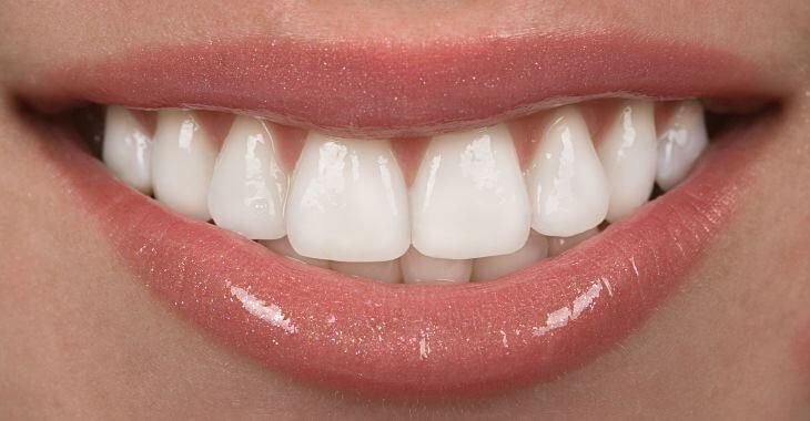 Perfect teeth after porcelain veneers application.