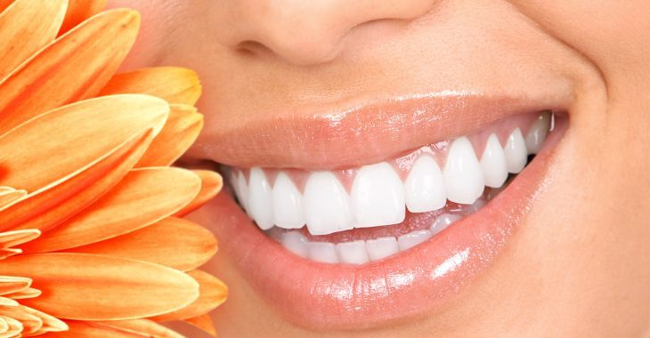 Woman showing perfect teeth after teeth whitening treatment in her smile.